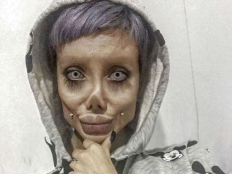 Iranian teenager undergoes 50 surgeries to look like her idol, Angelina Jolie